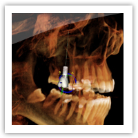 3d-cbct-cone-beam